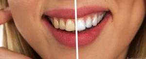 Smile Addiction Adelaide teeth whitening